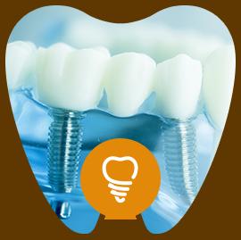 インプラント・ブリッジ・義歯